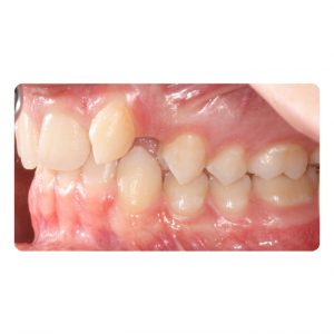 Braces Before and After Pictures in Atlanta, GA