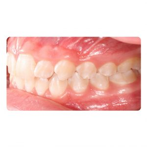 Invisalign Before and After Pictures in Atlanta, GA